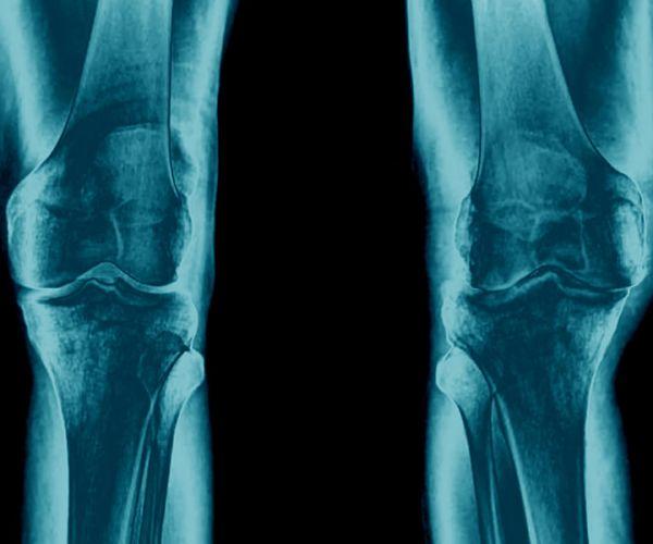 Artrosi di ginocchio (gonartrosi): che cos'è e come si cura?