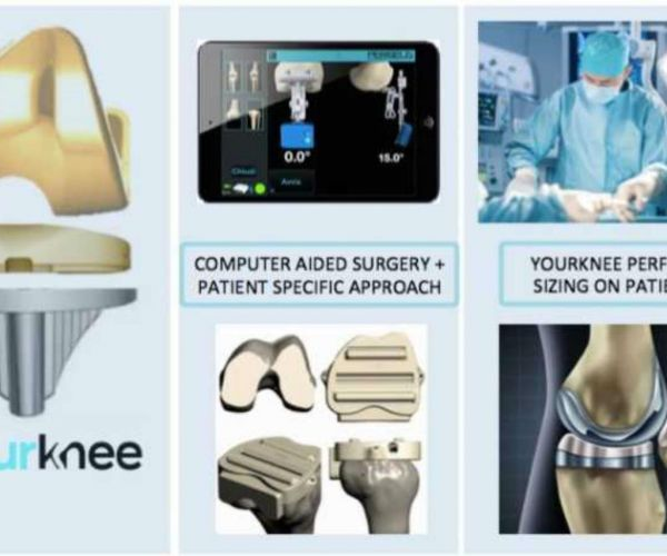 Protesi al ginocchio stampata in 3D: primo intervento al mondo realizzato all'Humanitas con il dr. Iacono