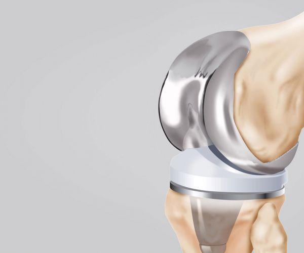 La protesi totale di ginocchio (PTG) nel 2020